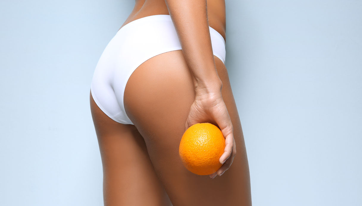 CELLULITE: COME RIMETTERSI IN FORMA!